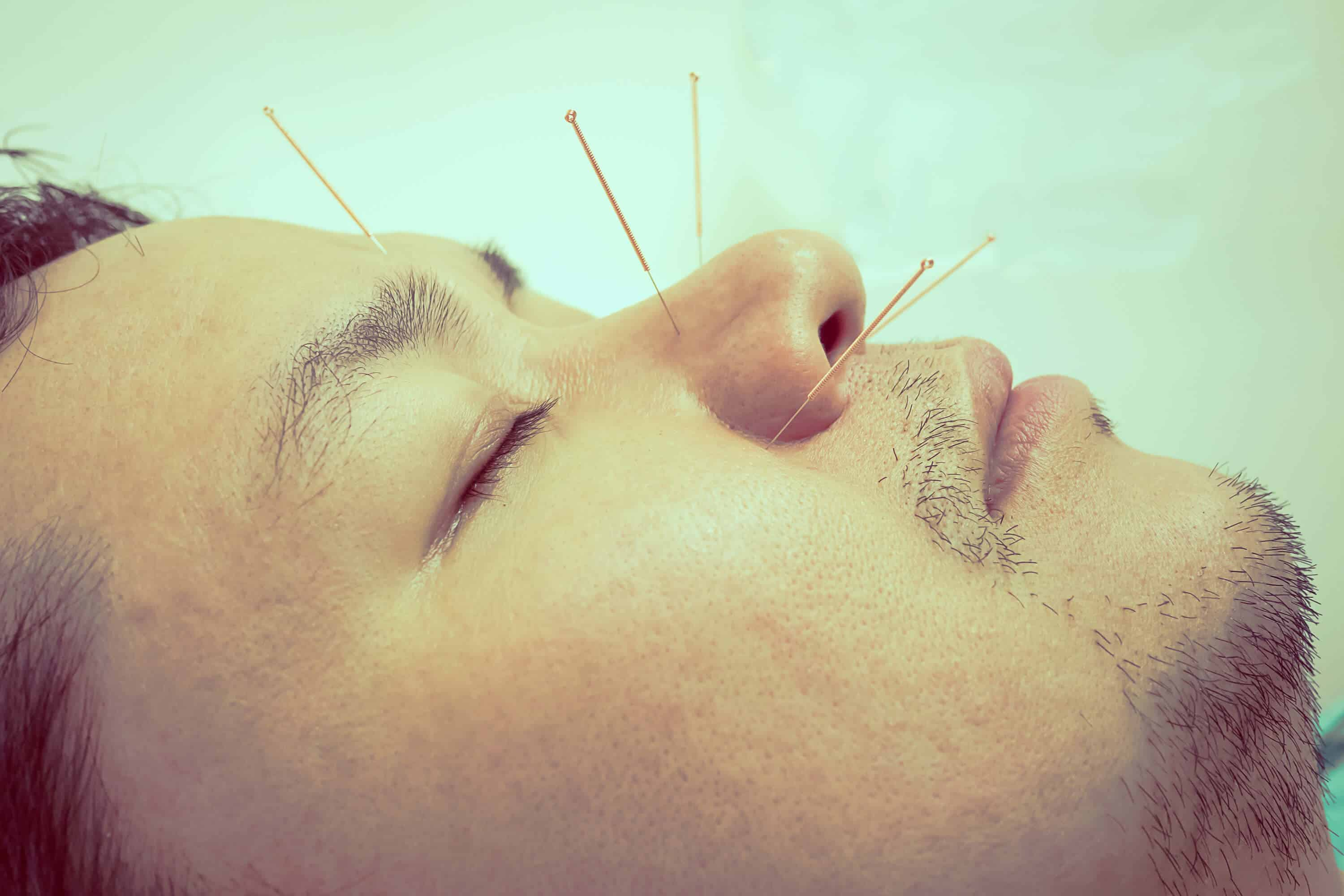 Cosmetic Acupuncture for Anti-Aging - Artkarma